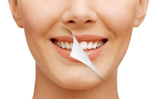 טיפולי הלבנת שיניים
