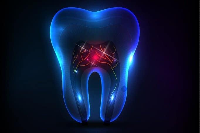 טיפולי שורש לשיניים