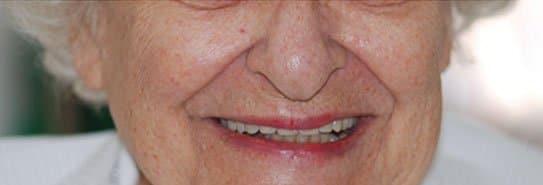 אחרי טיפול שיניים