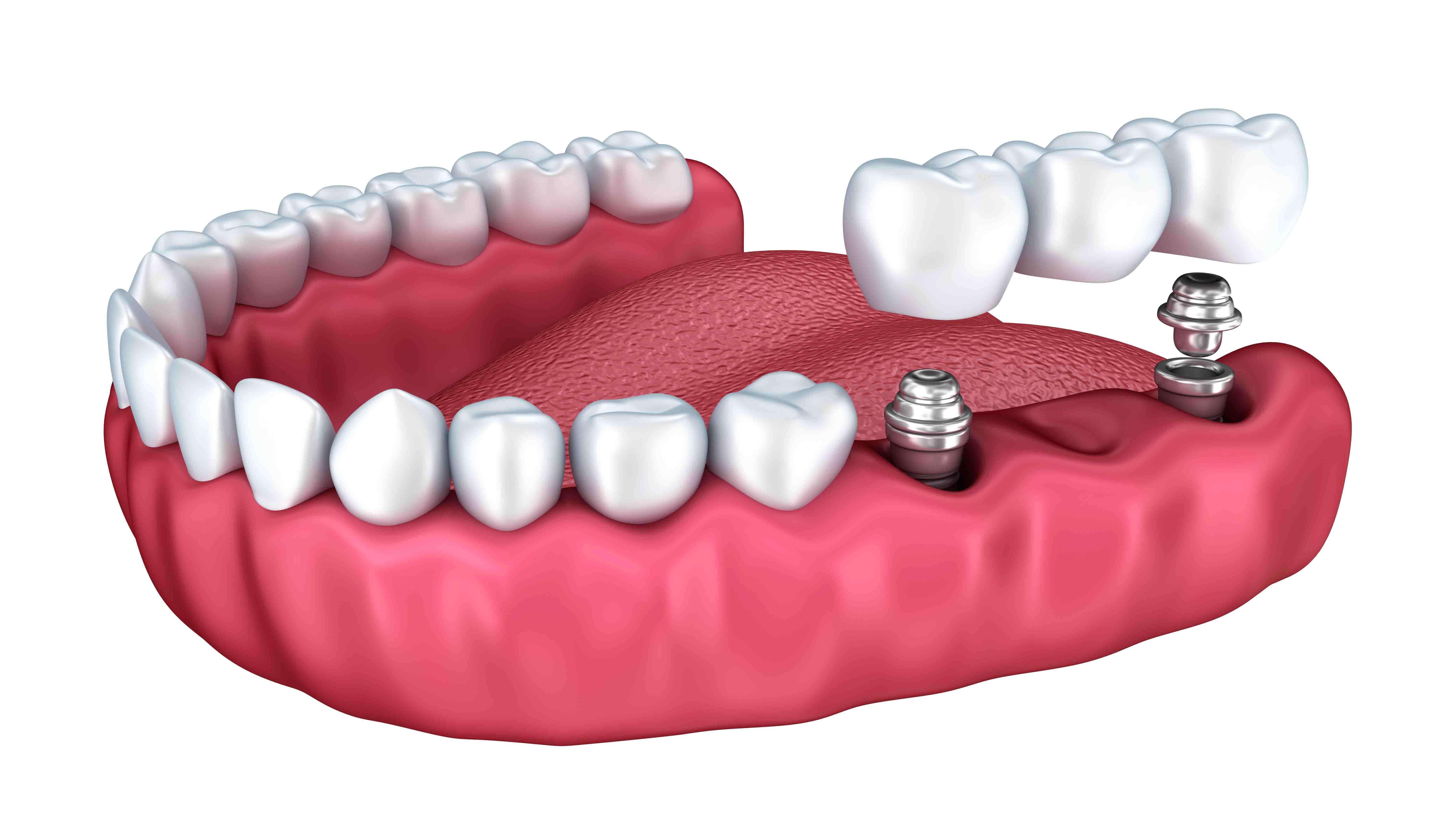 השתלת שיניים מלאה