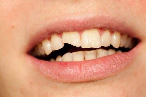 השלמת שן שבורה