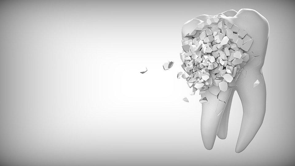 רגישות בשיניים